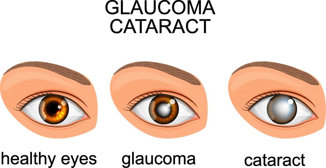תהליך שלבי המחלה - גלאוקומה שלא טופל ומוביל לקטרקט