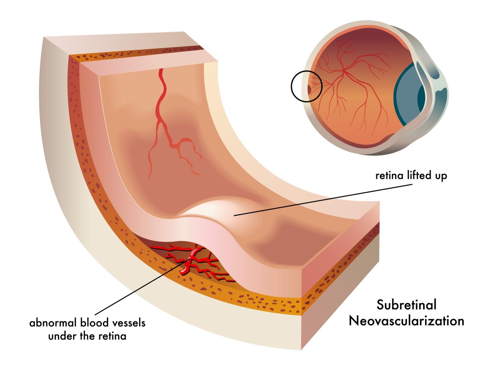 בצקת ברשתית העין