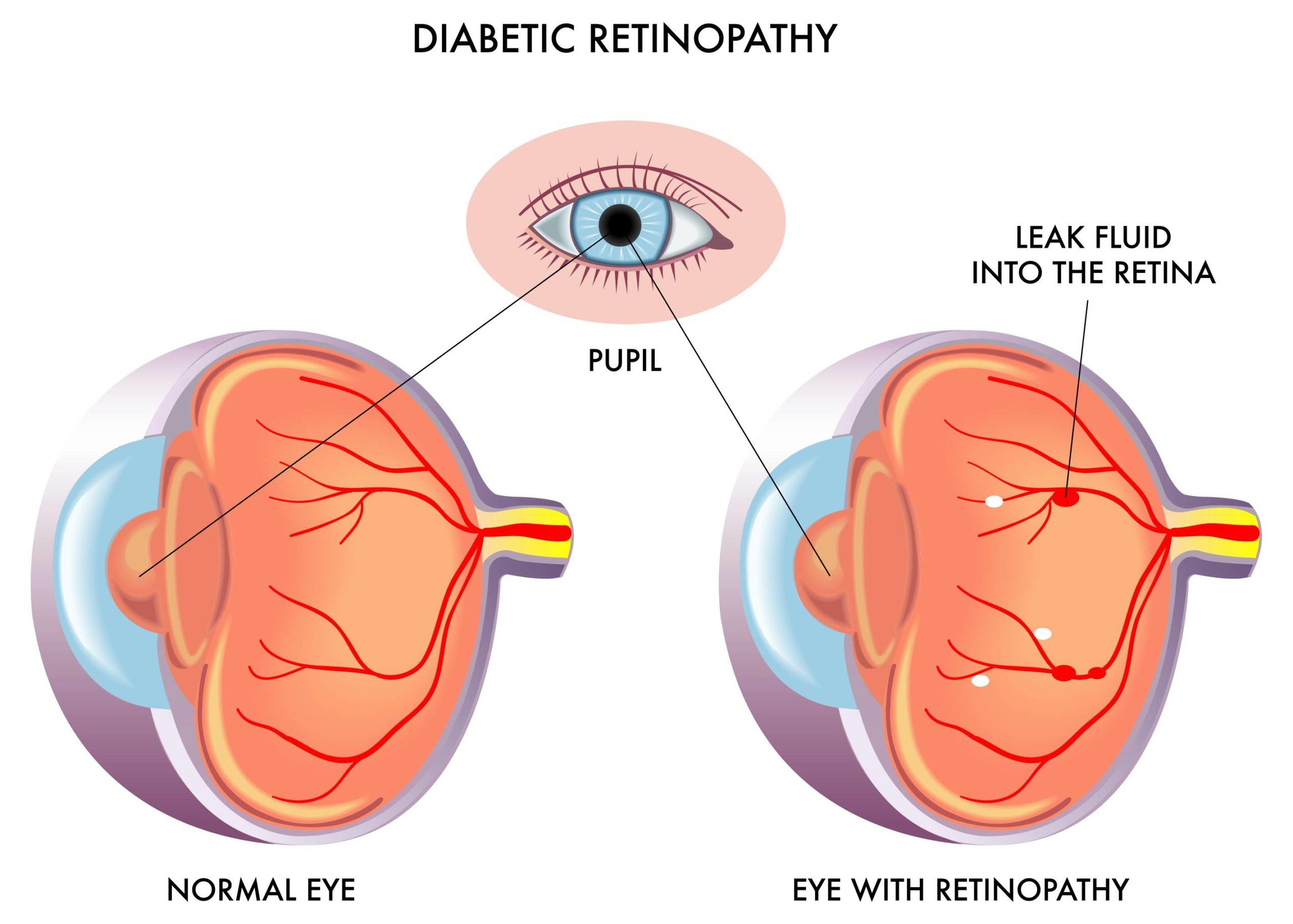 רטינופתיה סוכרתית