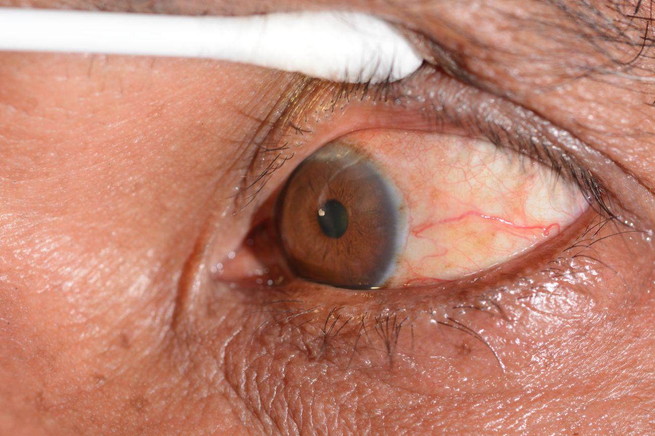 תקריב של עין עם גוף זר בעין